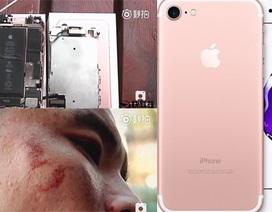 iPhone 7 phát nổ khi quay video, kính văng rách mặt