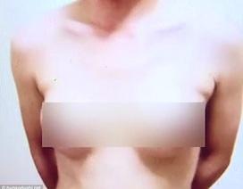 Thất nghiệp, người đàn ông bỏ tiền bơm ngực cho giống phụ nữ