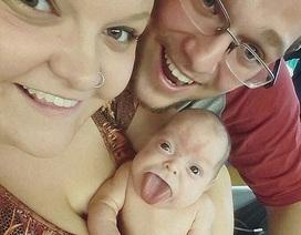 Em bé sơ sinh với chiếc lưỡi khổng lồ đã có thể cười