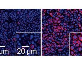 Virus kích hoạt các protein miễn dịch để trợ giúp kẻ thù