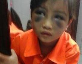 Vụ học sinh lớp 1 bị đánh tím mặt: Do cô giáo đánh vào đầu