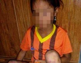 Bảo vệ bé gái 8 tuổi nghi bị bố đẻ đánh đập dã man
