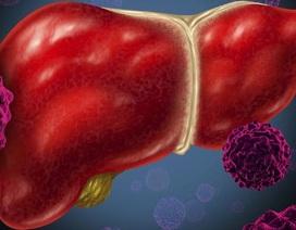 Ung thư gan - Mối nguy khó lường