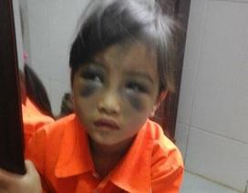 Lào Cai: Sẽ xử lý nghiêm khắc cô giáo đánh bé gái tím mặt