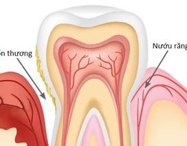 Bệnh nha chu – biến chứng răng miệng ở người đái tháo đường