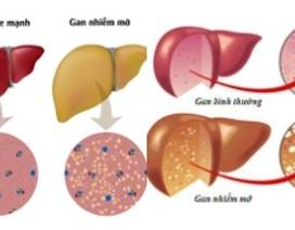 Phương pháp mới điều trị gan nhiễm mỡ