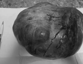 """Phẫu thuật khối u """"khủng"""" nặng 4kg trong bụng cụ bà"""