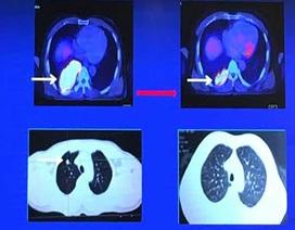 70% ca ung thư phổi phát hiện ở giai đoạn muộn