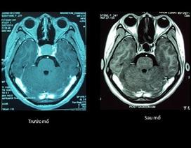 Mổ nội soi sọ não: Bước tiến mới của các nhà khoa học Việt Nam