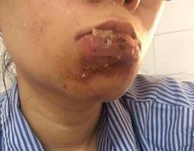 Một cô gái bị hoại tử môi vì tiêm chất làm đầy ở spa