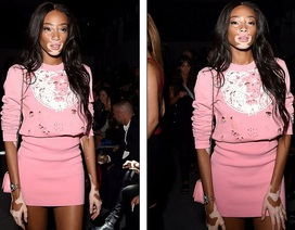 Người mẫu bị bạch tạng nổi bật khi đi xem thời trang