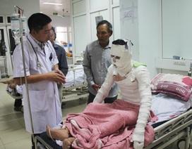 Bộ Y tế yêu cầu tập trung cứu chữa nạn nhân vụ nổ tại xưởng gỗ