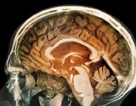 Tìm thấy các phân tử ô nhiễm trong tế bào não