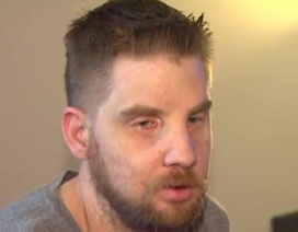 Người đàn ông ghép mặt kể câu chuyện cuộc đời sau 5 năm cấy ghép