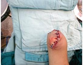 Chớp xi nhan độ xe phát nổ, trẻ 3 tuổi bị cụt tay mù mắt