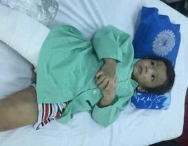 Bé trai 4 tuổi bị cha dượng cùng mẹ đẻ đánh gãy xương đùi