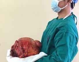 Cụ ông mang khối u cứng như đá nặng hơn 10kg trong bụng