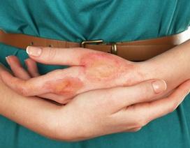Công nghệ mới có thể ngăn ngừa sẹo do bỏng