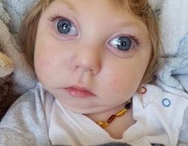 Bé trai bị khuyết hộp sọ mừng sinh nhật hai tuổi
