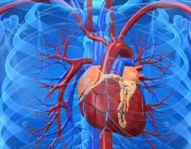 Cholesterol cao có thể dẫn đến thoái hóa khớp
