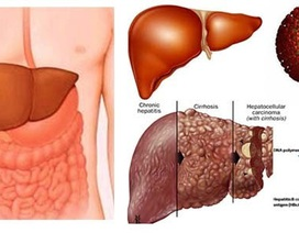 Viêm gan virus B - hiểu đúng để nâng cao chất lượng cuộc sống