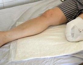 Rùng mình căn bệnh khiến con người tự chặt tay, chân trong vô thức
