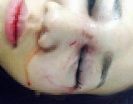 Thiếu úy công an bị tố đánh bạn gái chấn thương sọ não