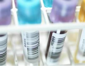Đã phát triển thành công thuốc có thể chữa khỏi HIV và AIDS?