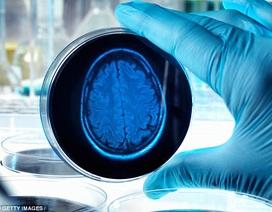 Dấu hiệu đầu tiên của bệnh Alzheimer có thể phát hiện khi trẻ 3 tuổi