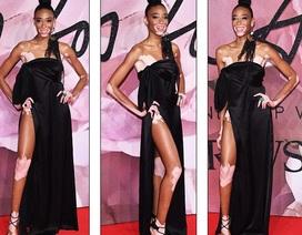 Váy xẻ táo bạo của người mẫu bạch tạng Winnie Harlow