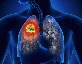 Những hiểu biết cơ bản nhất về ung thư phổi