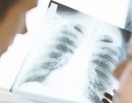 """Ung thư phổi đang """"thiên vị"""" giới tính?"""