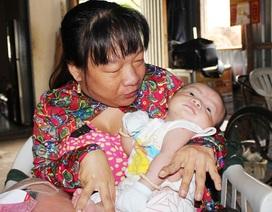 Mẹ tật nguyền lo cảnh con sơ sinh khát sữa