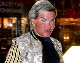 """""""Búp bê Ken"""" Rodrigo Alves lột da mặt để xóa nếp nhăn"""