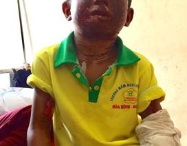 Ngã vào bếp lửa, cháu bé 5 tuổi bị lột toàn bộ da mặt