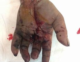 Vỡ toác tay vì pin dự phòng phát nổ