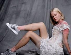 """Người mẫu bị tẩy chay vì đôi chân… """"không nhẵn nhụi"""""""