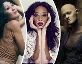 Những người mẫu thách thức mọi chuẩn mực thời trang