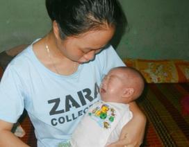 Xót xa bé 3 tháng tuổi phải dùng đến ống xông sữa để duy trì sự sống