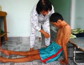 Bi kịch cả gia đình đều mắc bệnh teo rút chân tay