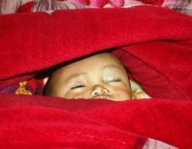 Ngã từ nhà sàn, bé 2 tuổi rạn hộp sọ