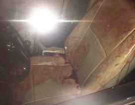 Tài xế taxi bị cướp đâm trọng thương trong đêm