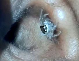 Đau đầu đến bác sĩ, phát hiện nhện bò ra từ trong tai