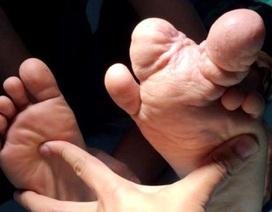 """Cậu bé 10 năm đi """"chân đất"""" vì ngón chân phì đại hiếm gặp"""