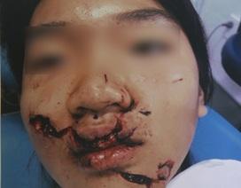 Choáng vì đói, học sinh 11 tuổi bị cửa kính cắt nát mặt