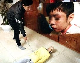 Án chung thân cho vụ bố đẻ, mẹ kế bạo hành bé trai ở Hà Nội?