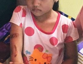 Bé gái 7 tuổi nghi bị bố dí sắt đỏ: Cách li cháu bé khỏi cha, mẹ kế