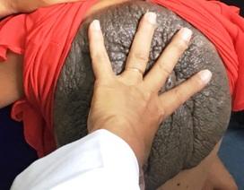 Những căn bệnh lạ cực kỳ hiếm gặp ở Việt Nam