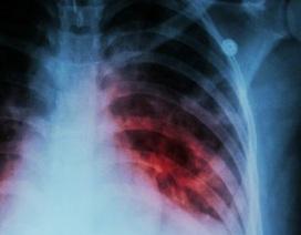 Bước tiến lớn trong tìm ra vắc xin bệnh lao