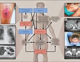 89.000 người chết trên thế giới do bệnh truyền nhiễm nguy hiểm Melioidosis